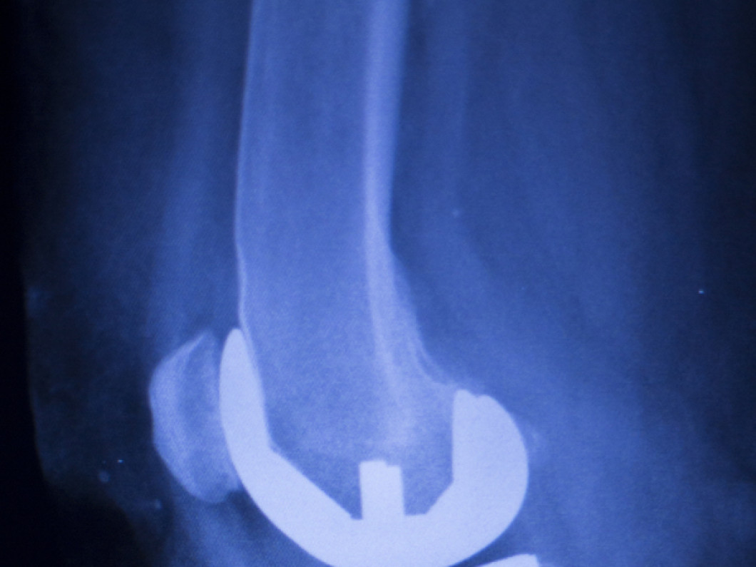 Joint Replacement Rehabilitation in Waterville, ME